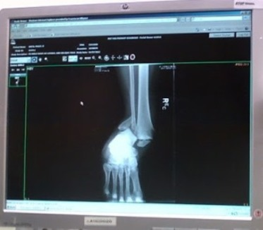 x-ray screen showing broken ankle